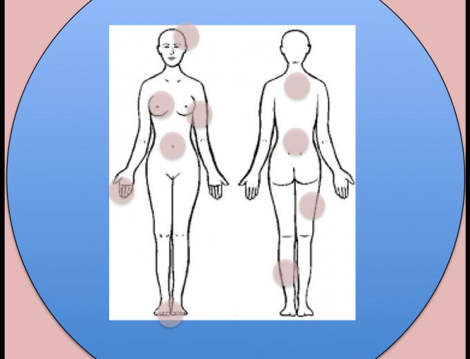 CONVERSES: El tractament del dolor en càncer de mama