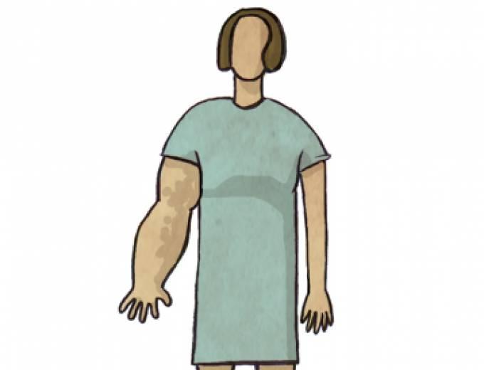 CONSELLS per prevenir el limfedema